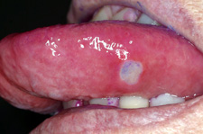 Aphthous ulcers present on movable tissue.